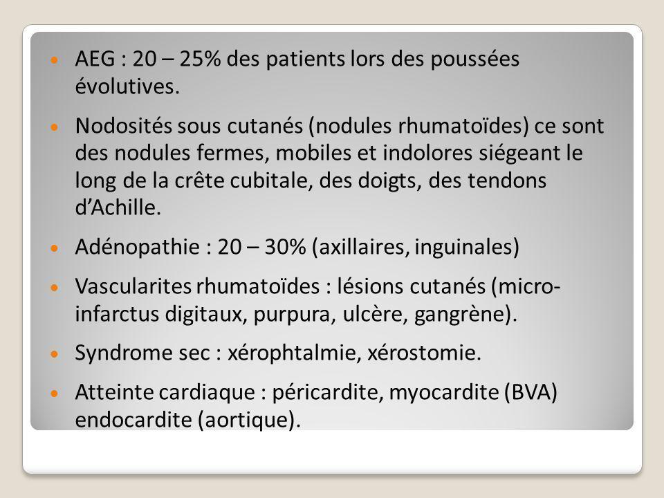 AEG : 20 – 25% des patients lors des poussées évolutives.
