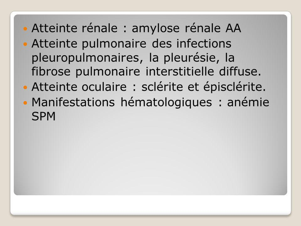 Atteinte rénale : amylose rénale AA