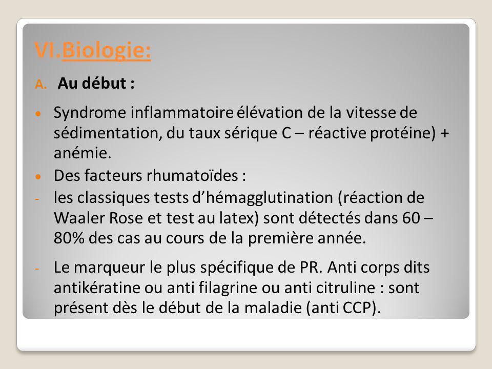 Biologie: Au début : Syndrome inflammatoire élévation de la vitesse de sédimentation, du taux sérique C – réactive protéine) + anémie.