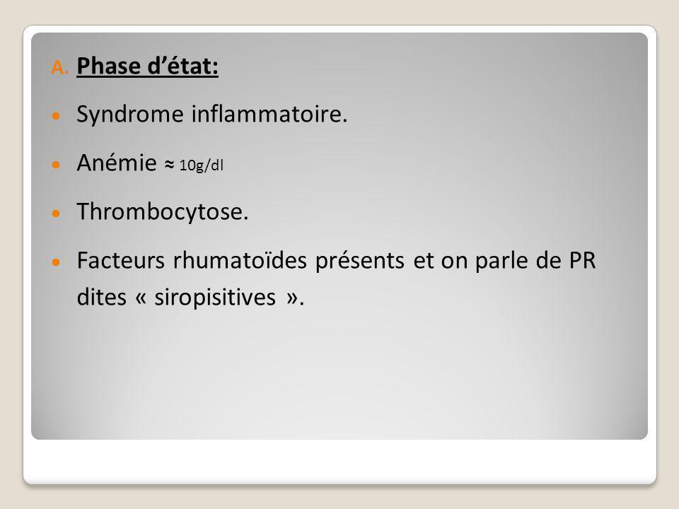 Phase d'état: Syndrome inflammatoire. Anémie ≈ 10g/dl.