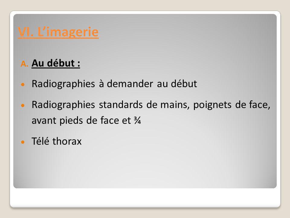 VI. L'imagerie Au début : Radiographies à demander au début