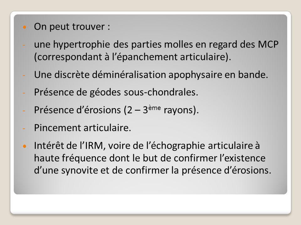 On peut trouver : une hypertrophie des parties molles en regard des MCP (correspondant à l'épanchement articulaire).