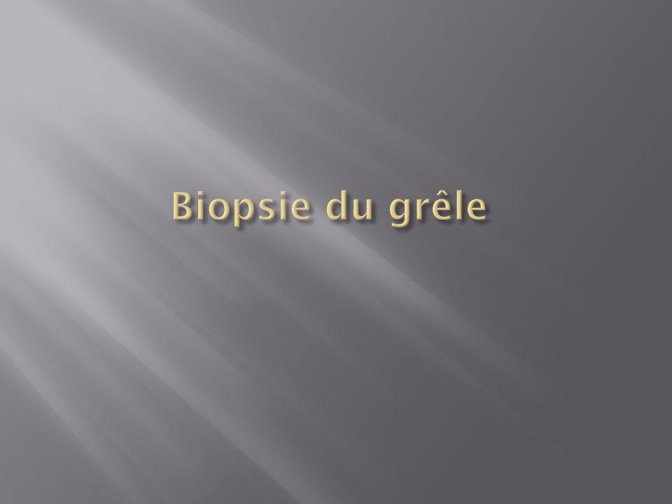 Biopsie du grêle