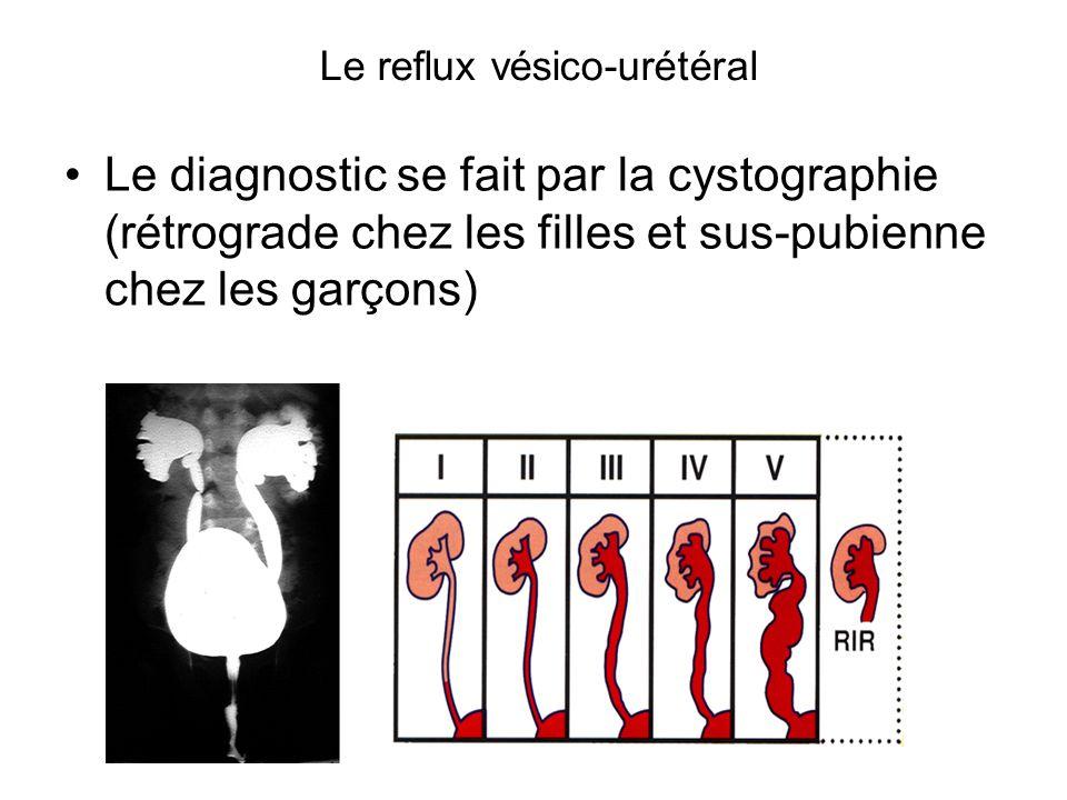 Le reflux vésico-urétéral