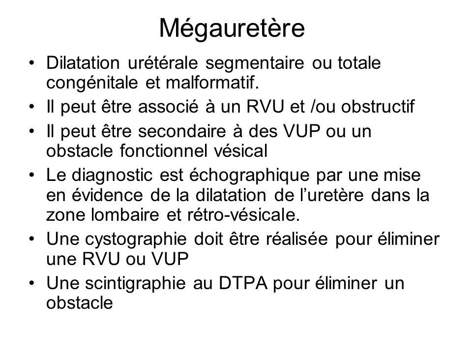 Mégauretère Dilatation urétérale segmentaire ou totale congénitale et malformatif. Il peut être associé à un RVU et /ou obstructif.