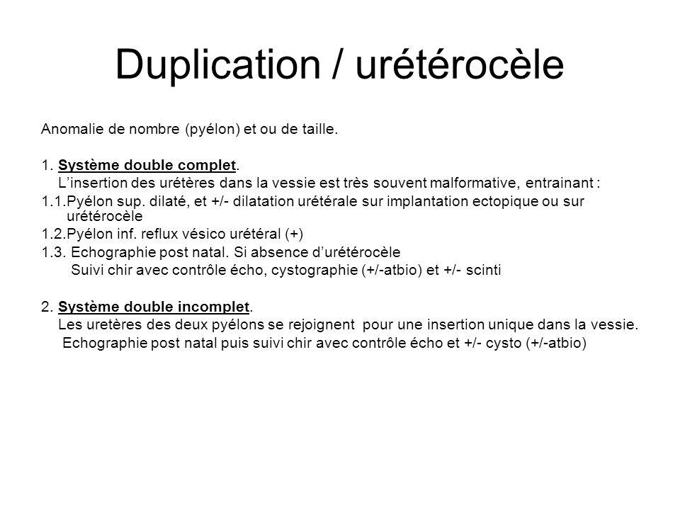 Duplication / urétérocèle