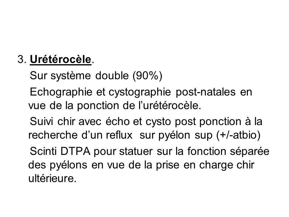 3. Urétérocèle. Sur système double (90%) Echographie et cystographie post-natales en vue de la ponction de l'urétérocèle.