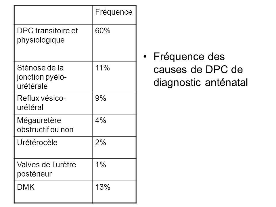 Fréquence des causes de DPC de diagnostic anténatal