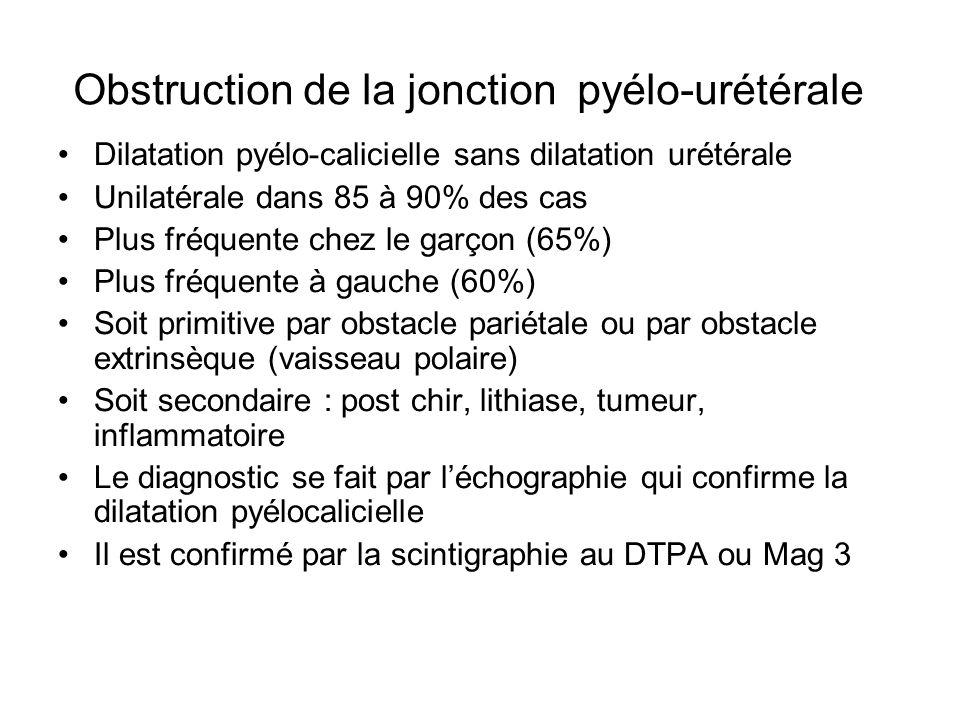 Obstruction de la jonction pyélo-urétérale