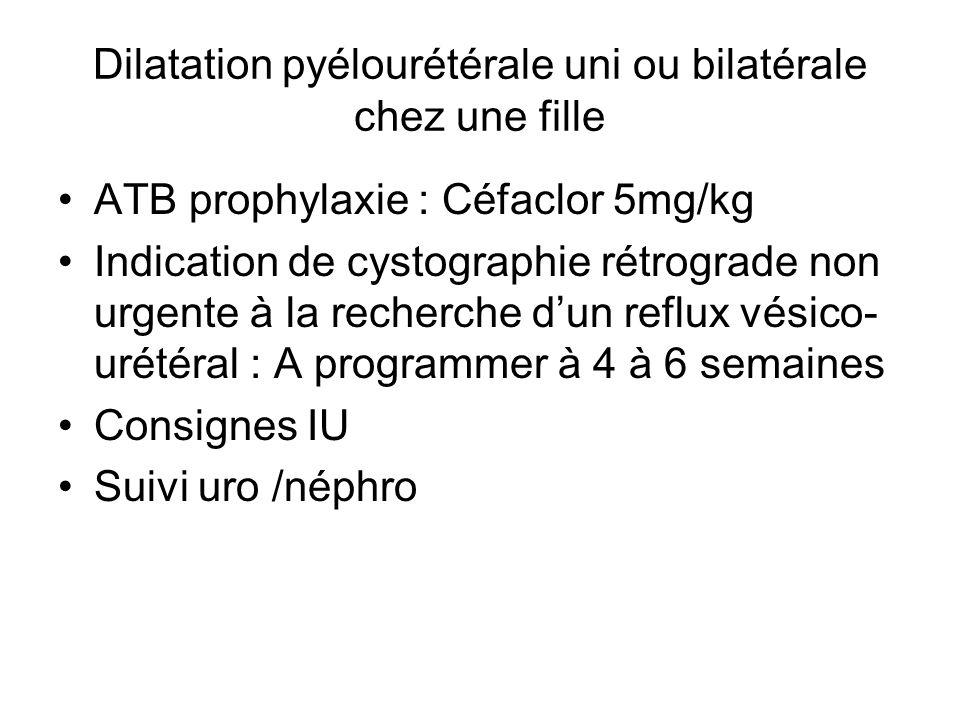 Dilatation pyélourétérale uni ou bilatérale chez une fille