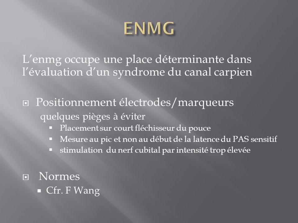 ENMG L'enmg occupe une place déterminante dans l'évaluation d'un syndrome du canal carpien. Positionnement électrodes/marqueurs.