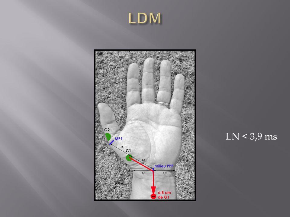 LDM LN < 3,9 ms
