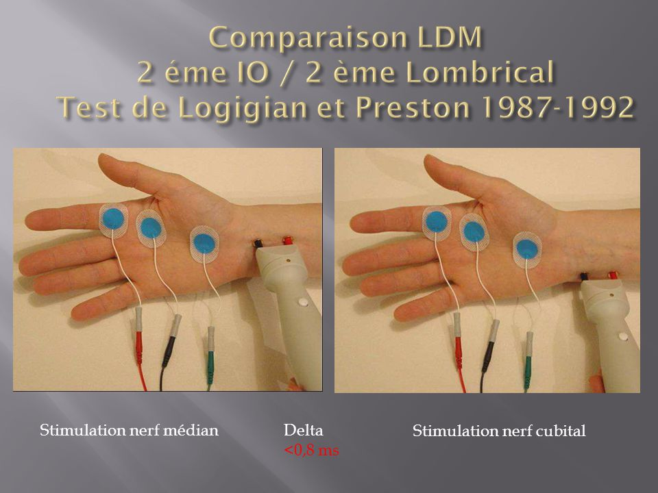 Comparaison LDM 2 éme IO / 2 ème Lombrical Test de Logigian et Preston 1987-1992