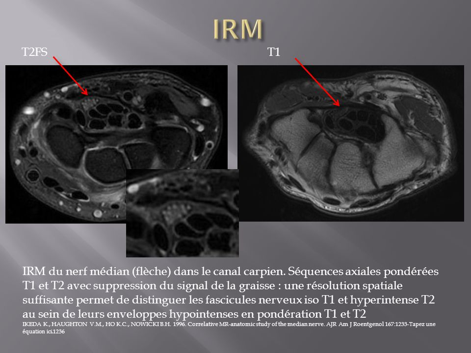 IRM T2FS. T1.