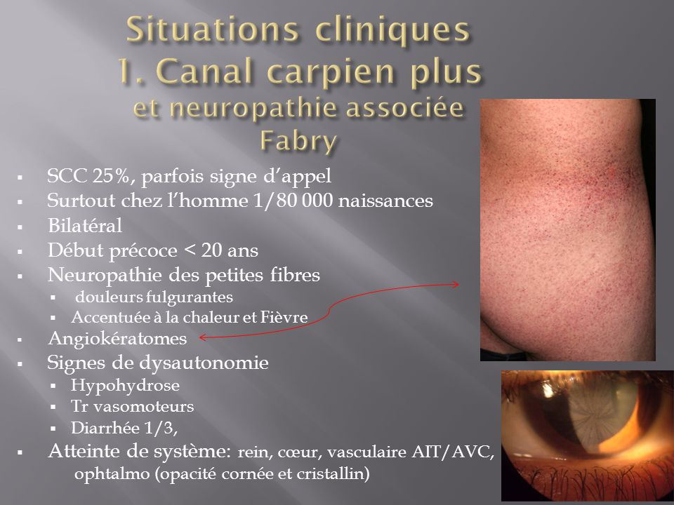 Situations cliniques 1. Canal carpien plus et neuropathie associée Fabry