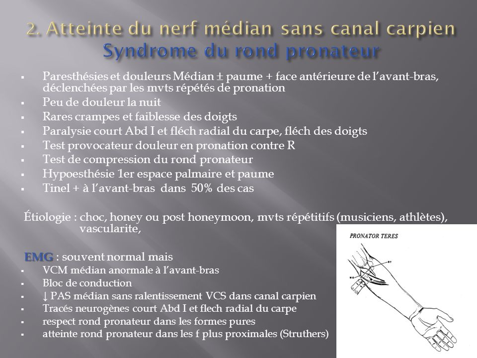 2. Atteinte du nerf médian sans canal carpien Syndrome du rond pronateur
