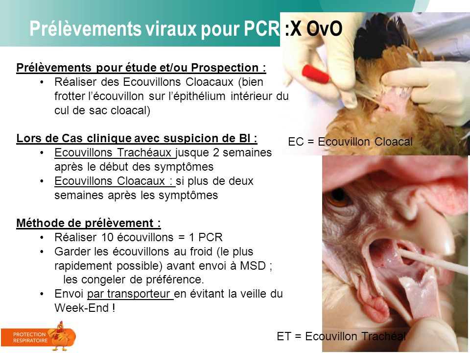 Prélèvements viraux pour PCR :X OvO