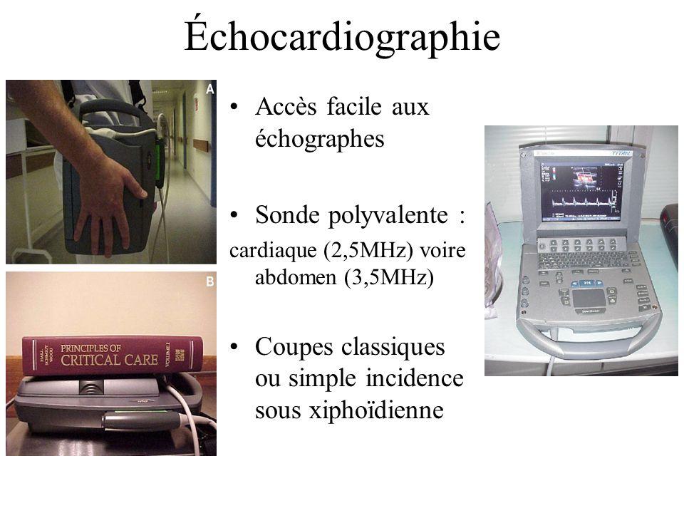 Échocardiographie Accès facile aux échographes Sonde polyvalente :