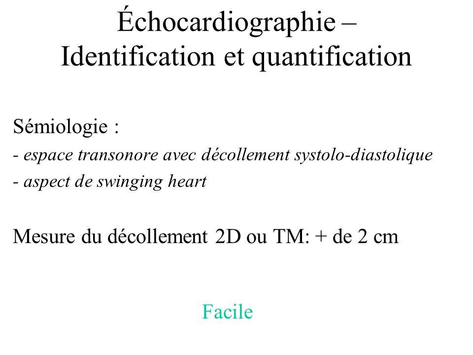 Échocardiographie – Identification et quantification