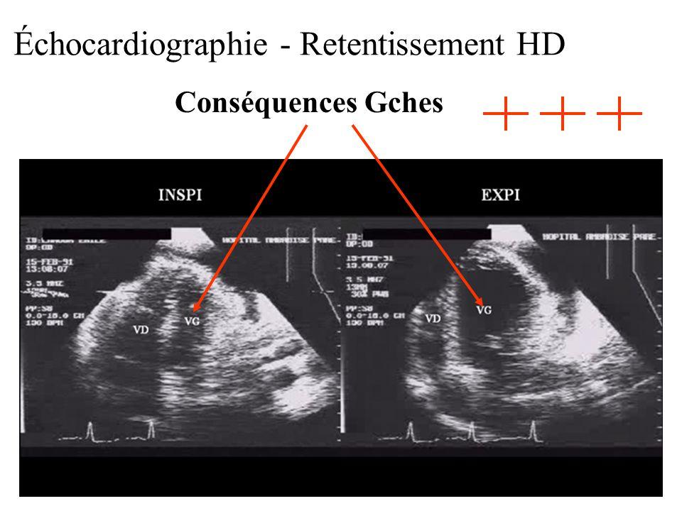 Échocardiographie - Retentissement HD