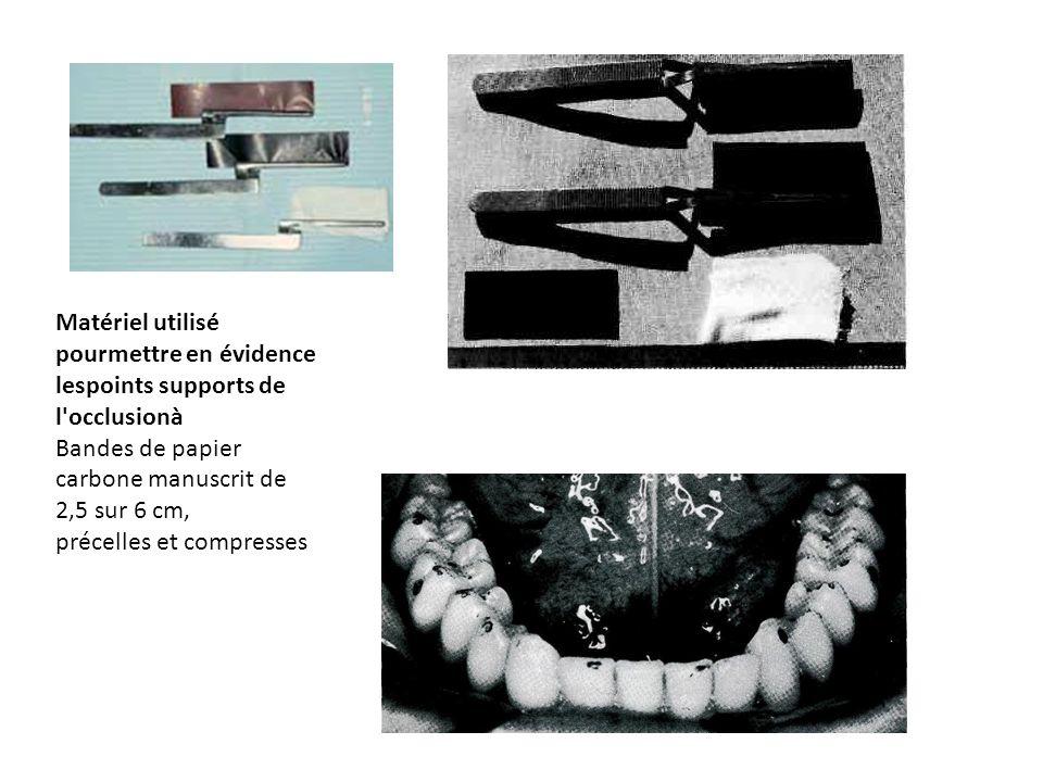 Matériel utilisé pourmettre en évidence lespoints supports de l occlusionà