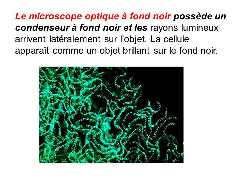 Le microscope optique à fond noir possède un condenseur à fond noir et les rayons lumineux arrivent latéralement sur l'objet.