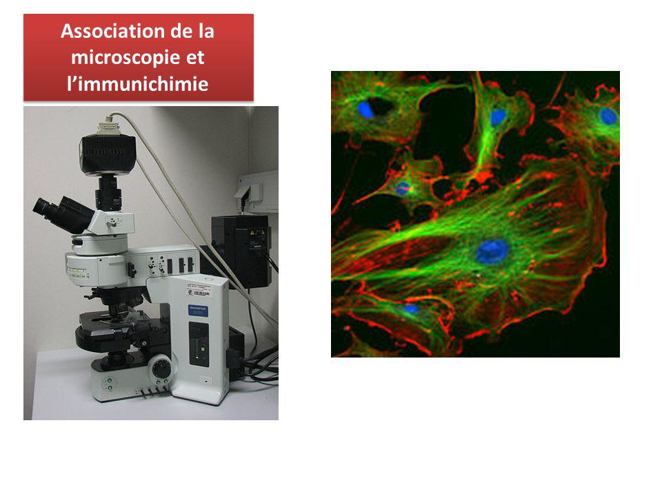 Association de la microscopie et l'immunichimie