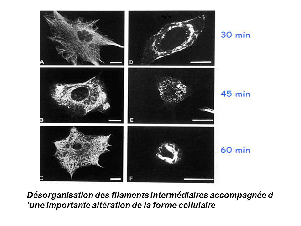 Désorganisation des filaments intermédiaires accompagnée d 'une importante altération de la forme cellulaire