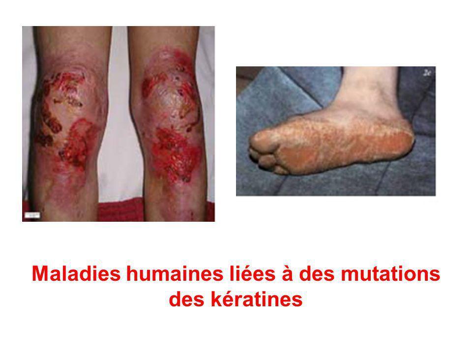 Maladies humaines liées à des mutations des kératines