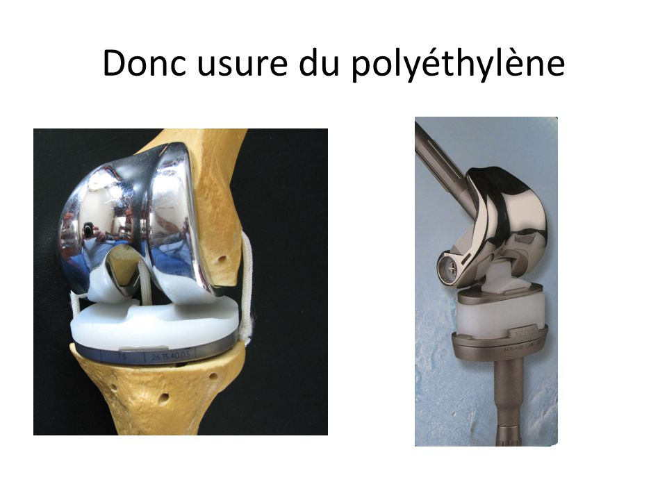Donc usure du polyéthylène