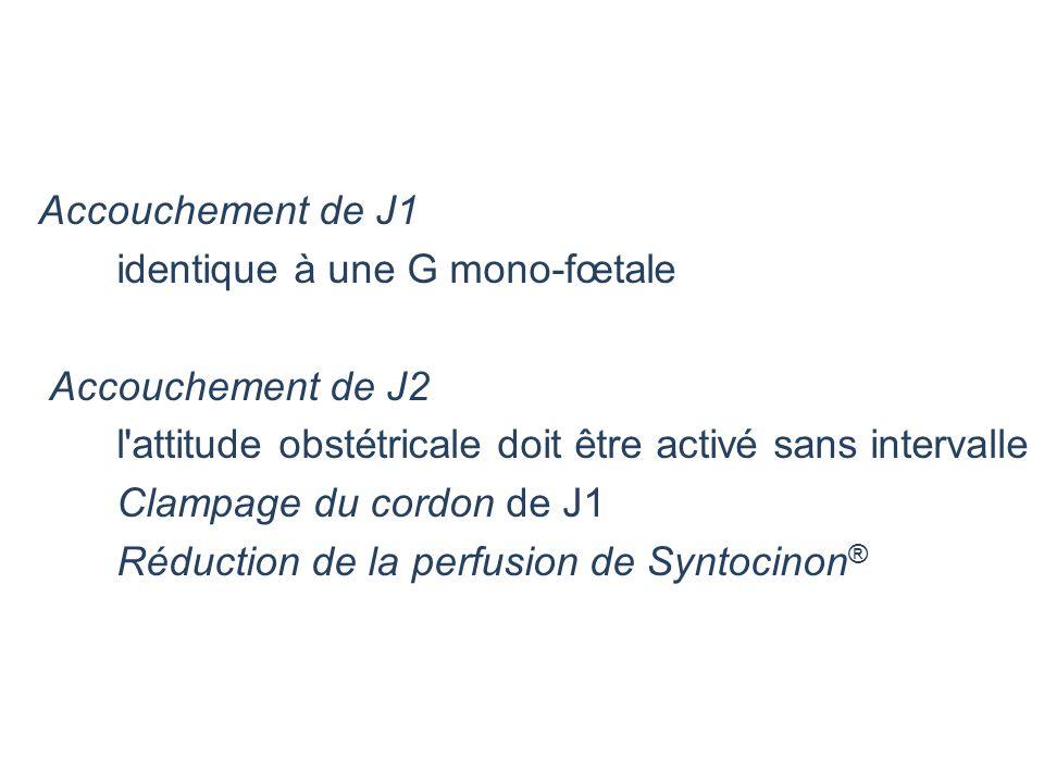 Accouchement de J1 identique à une G mono-fœtale. Accouchement de J2. l attitude obstétricale doit être activé sans intervalle.