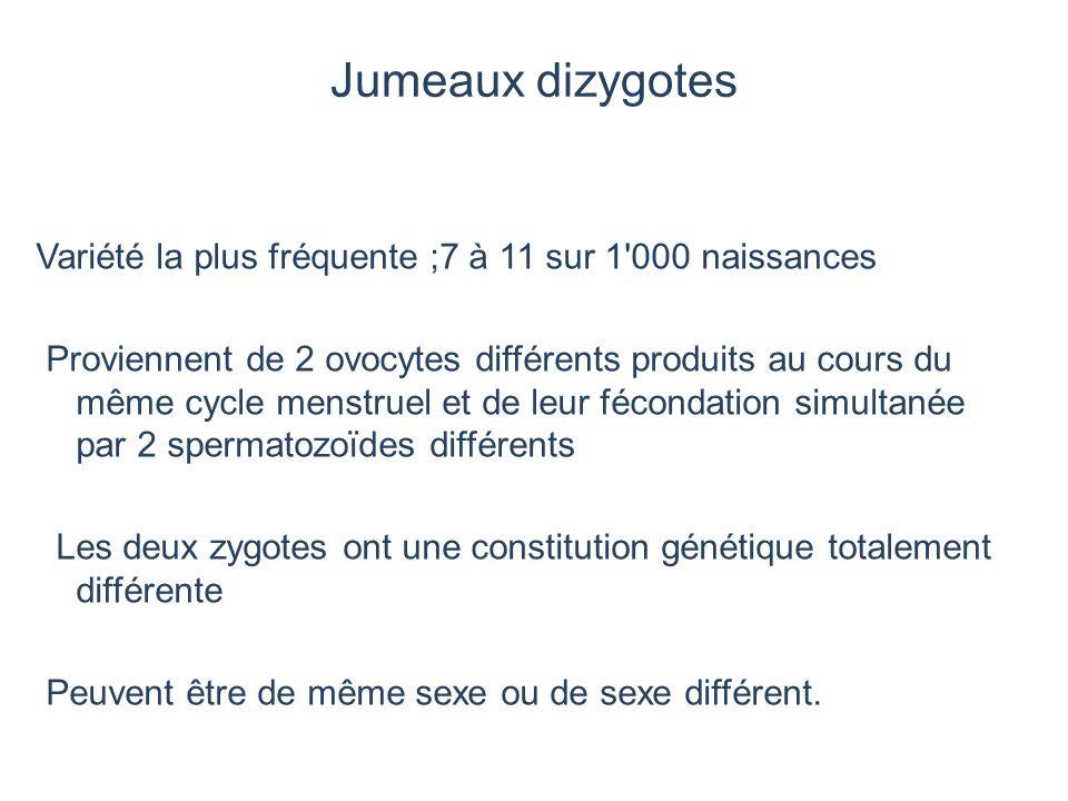 Jumeaux dizygotes