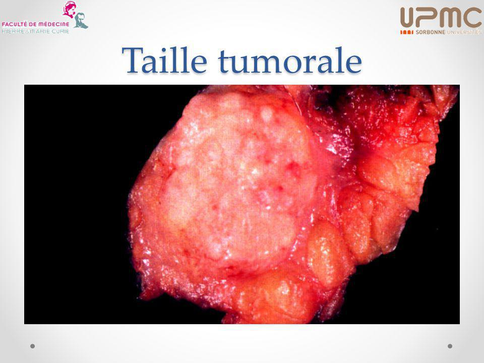 Taille tumorale
