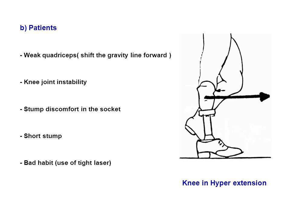 Knee in Hyper extension
