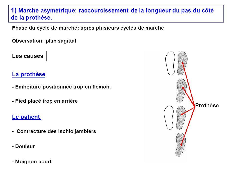 1) Marche asymétrique: raccourcissement de la longueur du pas du côté de la prothèse.