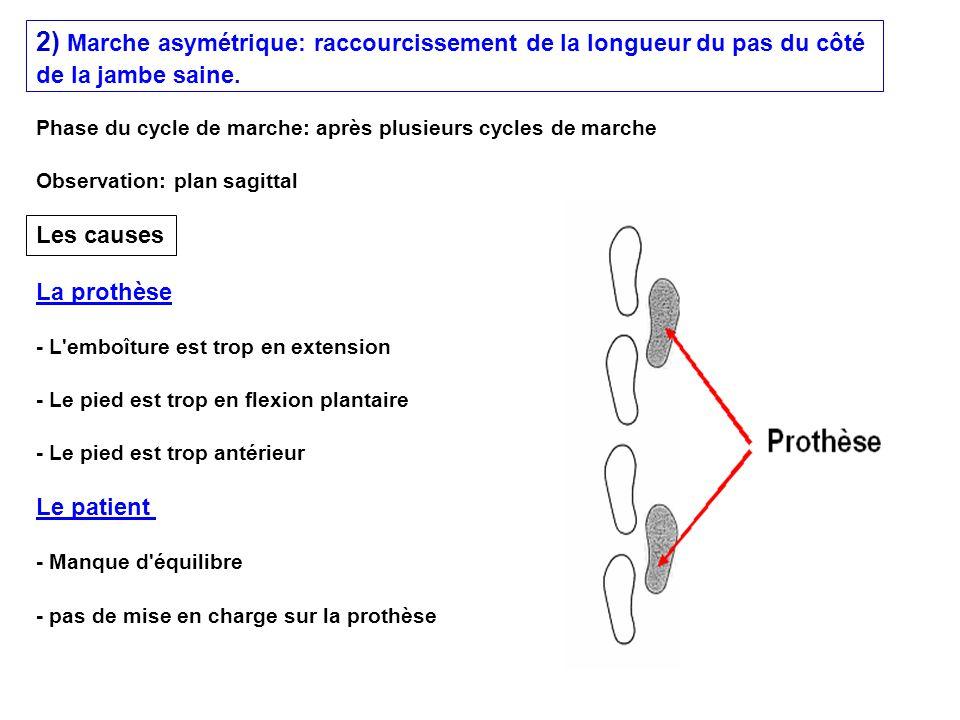 2) Marche asymétrique: raccourcissement de la longueur du pas du côté