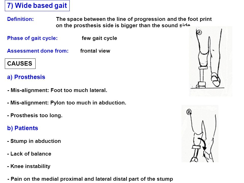 7) Wide based gait CAUSES a) Prosthesis b) Patients