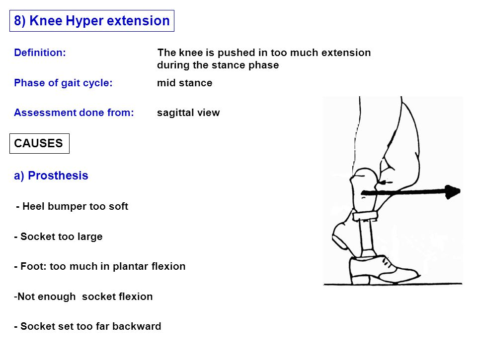 8) Knee Hyper extension CAUSES a) Prosthesis