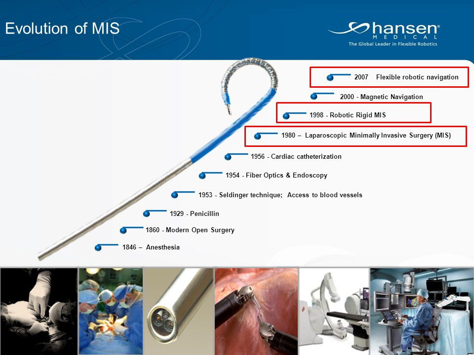 Evolution of MIS 2007 – Flexible robotic navigation. 2000 - Magnetic Navigation. 1998 - Robotic Rigid MIS.