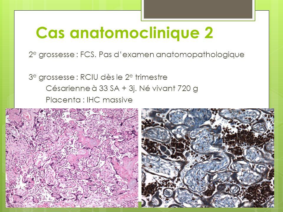 Cas anatomoclinique 2 2e grossesse : FCS. Pas d'examen anatomopathologique. 3e grossesse : RCIU dès le 2e trimestre.