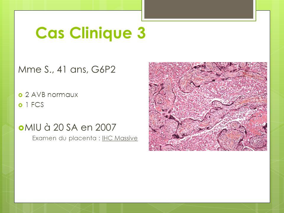 Cas Clinique 3 Mme S., 41 ans, G6P2 MIU à 20 SA en 2007 2 AVB normaux