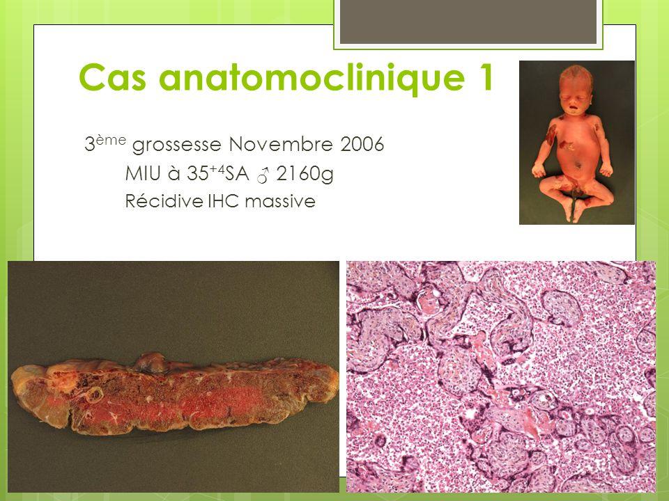 Cas anatomoclinique 1 3ème grossesse Novembre 2006