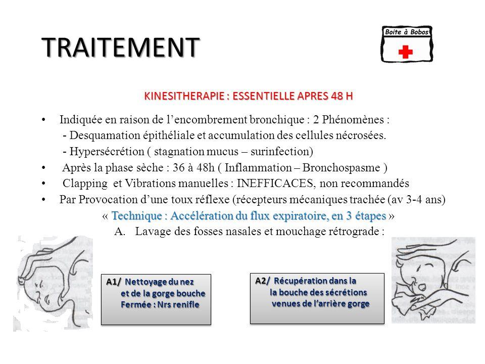TRAITEMENT KINESITHERAPIE : ESSENTIELLE APRES 48 H