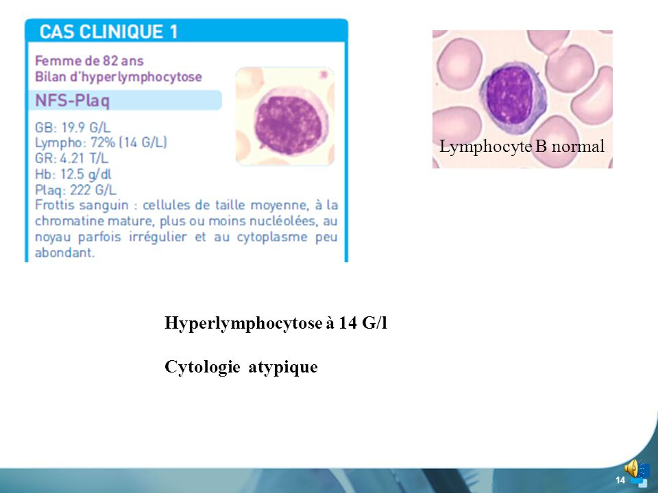 Hyperlymphocytose à 14 G/l Cytologie atypique