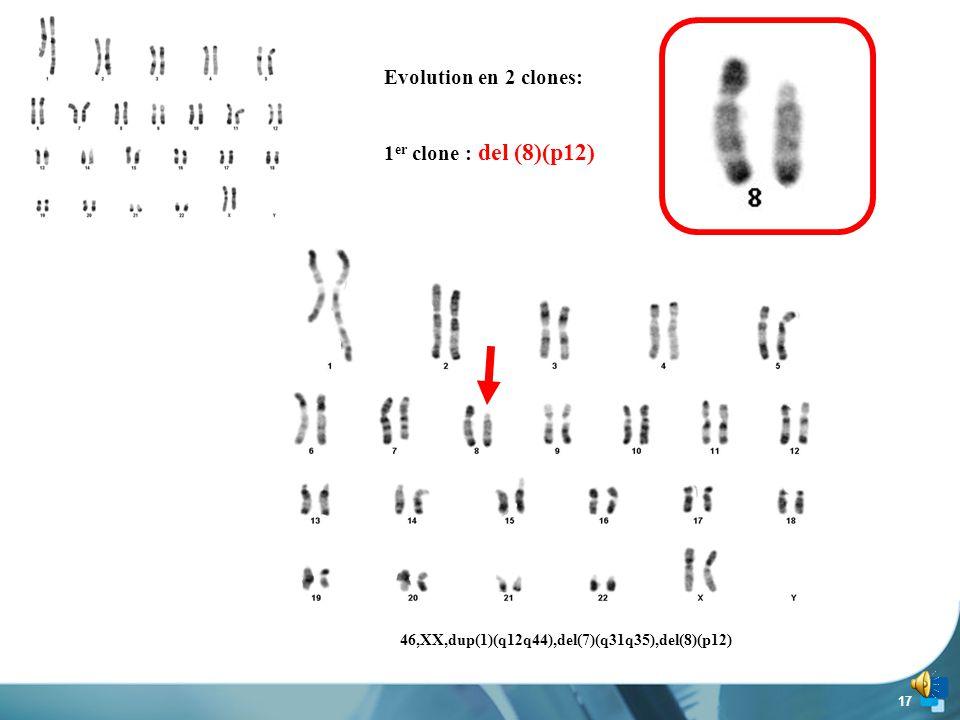 Evolution en 2 clones: 1er clone : del (8)(p12)