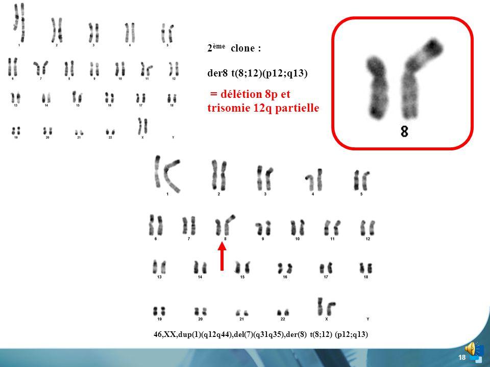 46,XX,dup(1)(q12q44),del(7)(q31q35),der(8) t(8;12) (p12;q13)