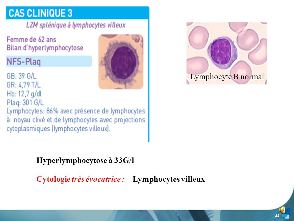 Hyperlymphocytose à 33G/l