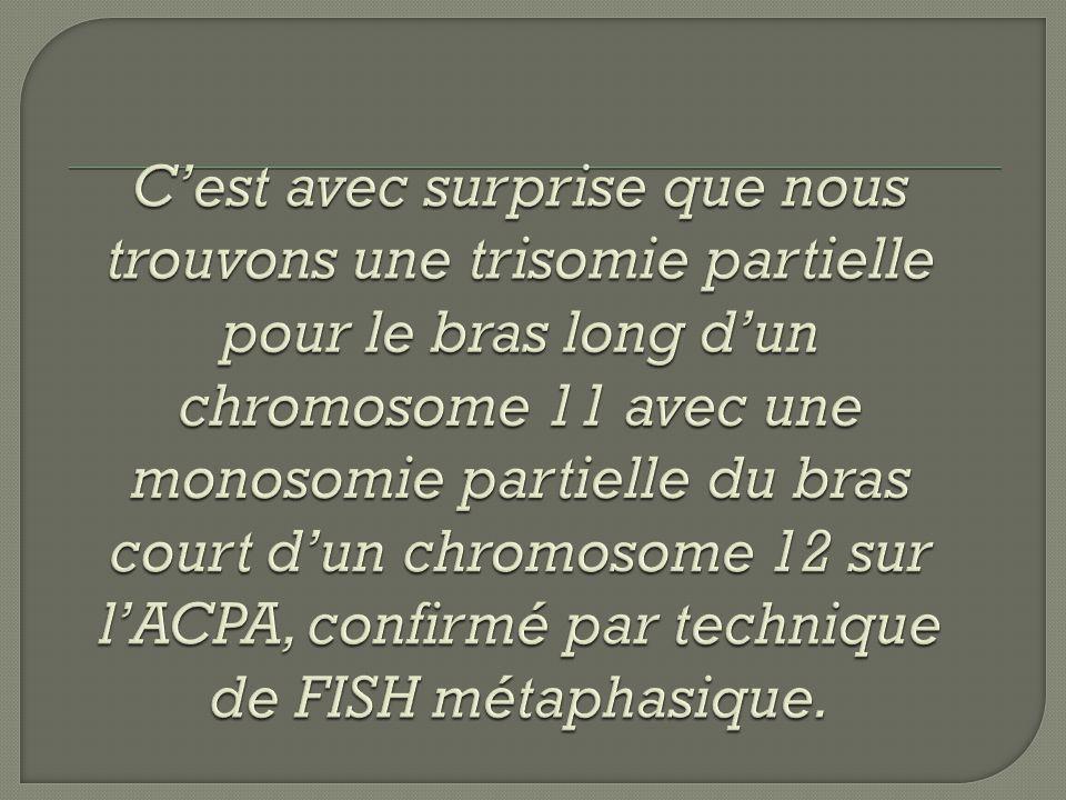 C'est avec surprise que nous trouvons une trisomie partielle pour le bras long d'un chromosome 11 avec une monosomie partielle du bras court d'un chromosome 12 sur l'ACPA, confirmé par technique de FISH métaphasique.