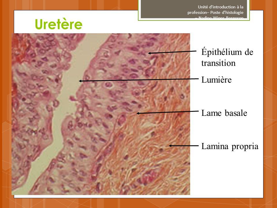 Uretère Épithélium de transition Lumière Lame basale Lamina propria