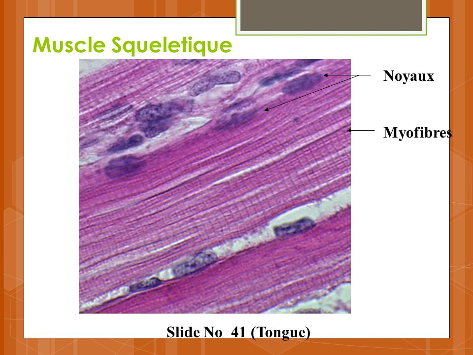 Muscle Squeletique Noyaux Myofibres Slide No 41 (Tongue)